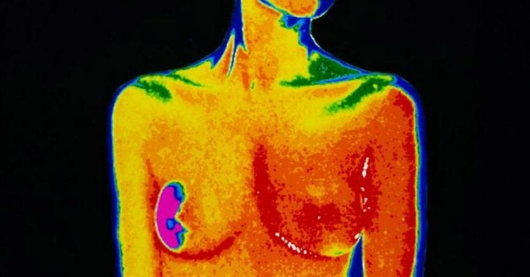 Scientists call unexpected cause of breast cancer